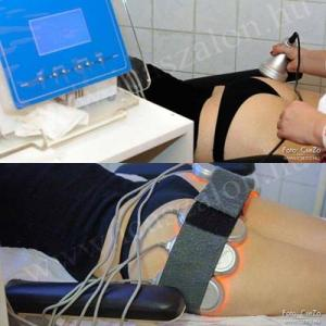 POPSI kezelés : 10 perc ultrahang, 10 perc tripoláris rádiófrekvencia 15perc izomstimulálás+ bőrfeszesítés